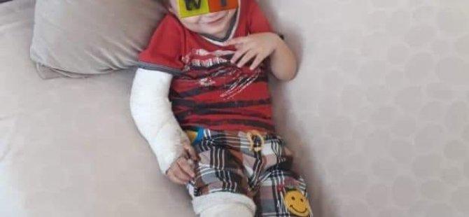 Anne ve sevgilisi çocuğunun kolunu bacağını kırdılar
