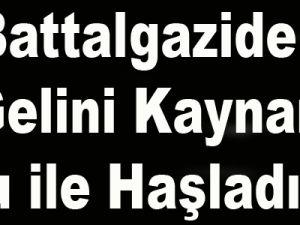Kayseri'de Gelini Kaynar Su ile Haşladılar