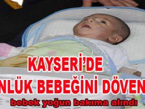 KAYSERİ'DE 79 GÜNLÜK BEBEĞİNİ DÖVEN BABA KAYIP