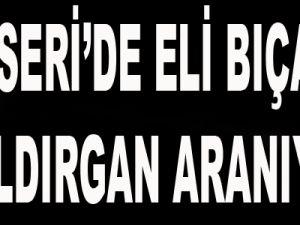 KAYSERİ'DE FAİLİ MEÇHUL SALDIRGAN ARANIYOR