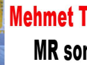 Mehmet Topal'ın MR sonucu!