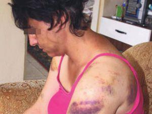 Karısını Dövdü Gözaltına Alındı