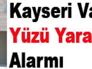 Kayseri Valilik'te Yüzü Yaralı Şahıs Alarmı