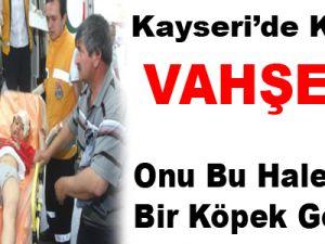 KAYSERİ'DE KÖPEK VAHŞETİ! Küçük Çocuk Son Anda Kurtuldu