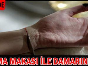 Kayseri'de Budama Makası ile Damarını Kesti