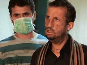 Yüz Nakli Olan Uğur  İlk Kez Kamera Karşısında VİDEO