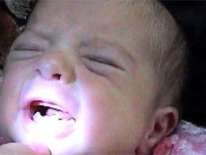 Bu Bebek Ağzında 4 Dişle Doğdu/Video