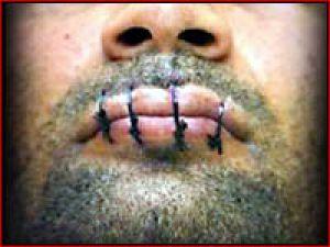 408 mahkum ağzını dikti
