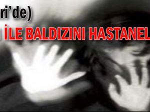 KAYSERİ'DE KARISI İLE BALDIZINI HASTANELİK ETTİ