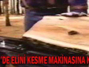 KAYSERİ'DE ELİNİ KESME MAKİNESİNE KAPTIRDI