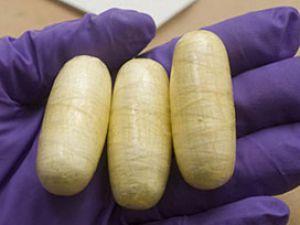Midesinden 1 kilo 525 gram sıvı kokain çıkarıldı
