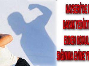 Kayseri'de eşinden dayak yedikten sonra evden kovulan kadın, sığınma evine yerleştirildi