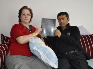 KAYSERİ'DE KARNINDA UNUTULAN İĞNE İLE  6 YIL YAŞADI
