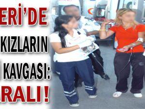 Kayseri&#39de Küçük Kızların Sevgili Kavgası : 2 yaralı