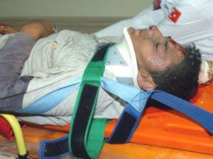 Kayseri&#39de Devrilen İskelenin Altında Kalan 2 İşçi Yaralandı