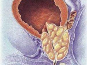 Her 12 erkekten biri prostat kanseri