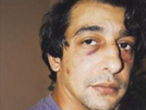 Almanyada Bir Türk Yardım Etti, Polisten Dayak Yedi