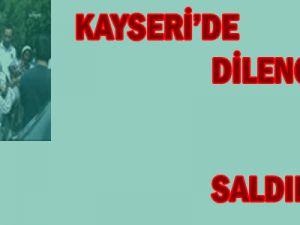 Kayseri&#39de Dilenci Saldırısı