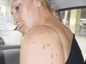 Eşini&#39nin Kafasında Şişe Kırdı Vücudunda  Sigara  söndürdü