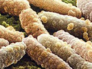 Almanya: Öldürücü E. coli salgını sona erdi