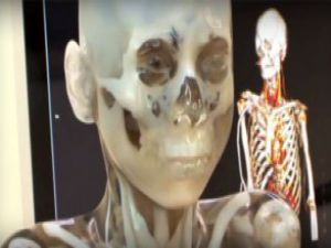 Bebeğinizi 3D yöntemiyle izleyin - VİDEO