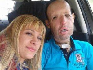 Yüz nakli yaptıran Recep Sert nişanlandı