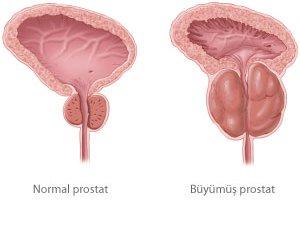 Prostat erkekleri korkutuyor