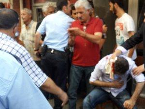 MHP'li başkanın eşi darp edildi
