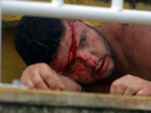 Paranaense-Vasco De Gama Maçında Kan Döküldü