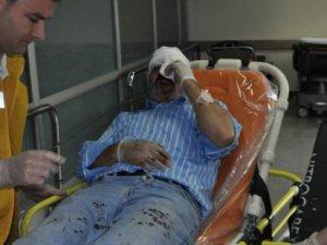 Kayseri'de sanayide pompalı tüfekle esnafa dayak