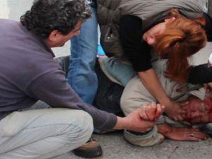 Nefes Almkata Zorlanınca Boğazını delerek hayatını kurtardı