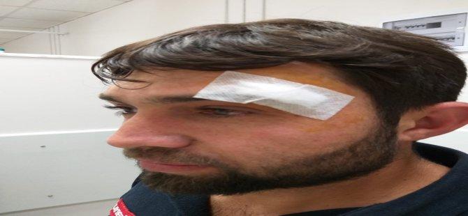 Yahyalı'da Ambulans sürücüsüne saldırı