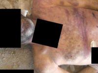 Suriye'deki Savaş Suçunun Belgeleri- VİDEO