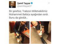CHP Milletvekili Eren Erdem AK Partili vekili bacağından ısırdı foto