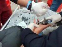 Kayseri'de bir gencin parmağına sıkışan yüzüğü itfaiye çıkardı